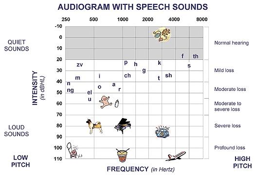 Audiogram with Speech Sounds